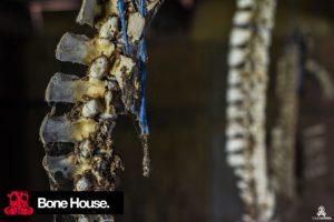Bone House